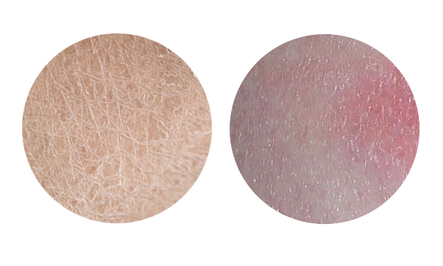pelle secca o disidratata cosmesi naturale